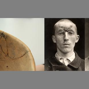 Close up of a bowl stitched back together mirroring on the right two black and white pictures of a man with a similar scar on his forehead.