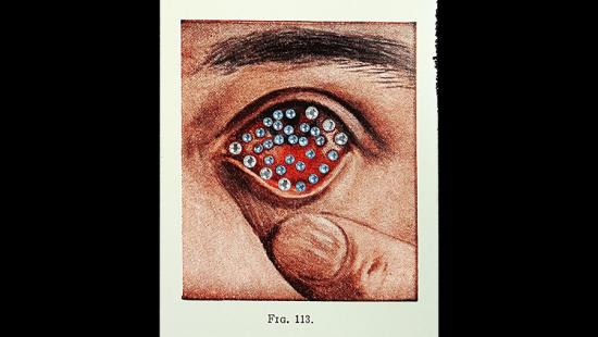 An eye with translucent orbs floating on it and a finger pulling the skin underneath it.
