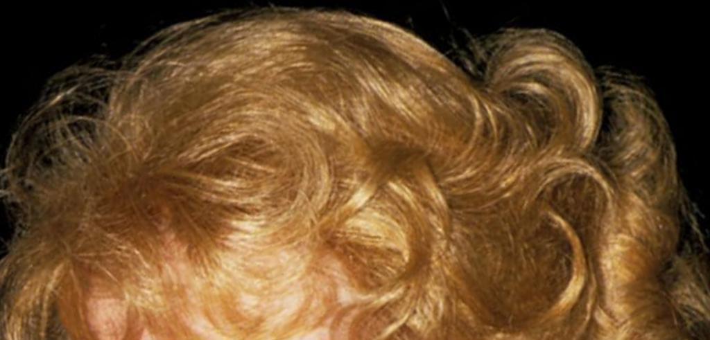 Close up of a woman's blonde curly head with a black background.